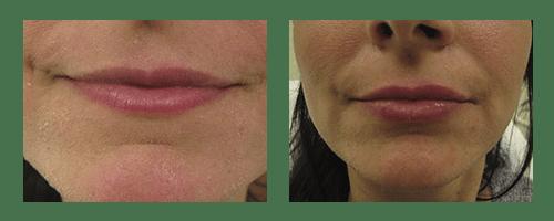 Lip Enhancements by Dr. Glynis Ablon, Ablon Institute.