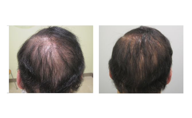 Before and After showing Dr. Glynis Ablon's Hair Regrowth Program