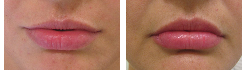 Lip Implants by Dr. Glynis Ablon, Ablon Institute.