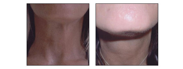 Neck rejuvenation at Ablon Skin Institute