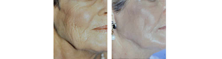 Results of Thermaphoto treatment at Ablon Institute.