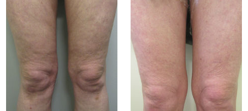 Before and after showing results of Endymed Pro RF / Tripollar RF treatments at Ablon Skin Institute