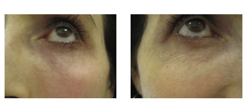 Before and After showing results of Tripollar RF treatment at Ablon Skin Institute