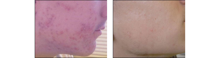 Acne treatments at Ablon Skin Institute.