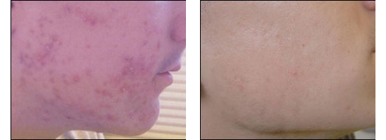 Medical Dermatology at Ablon Skin Institute.