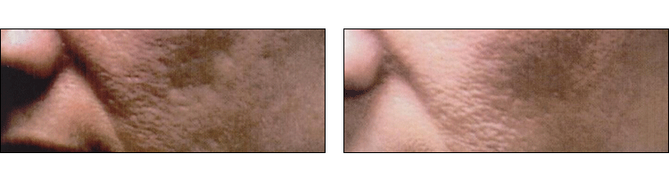 Acne Scar Treatment results (before & After) at Ablon Skin Institute
