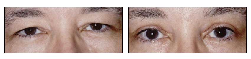 Blepharoplasty at Performed by Dr. Glynis Ablon at Ablon Skin Institute