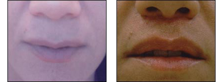 Before & After showing Butterfly Lip Lift by Dr. Glynis Ablon.