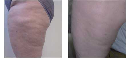 Cellulite Treatments at Ablon Skin Institute, Manhattan Beach CA.