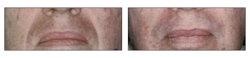 Fat Transfer Before & After by Ablon Institute, Manhattan Beach CA