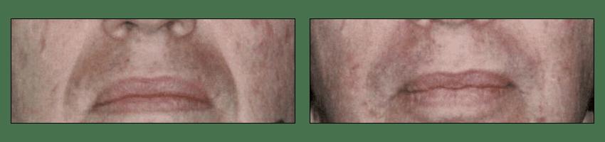 Fat Transfer Before & After by Ablon Institute, Manhattan Beach CA