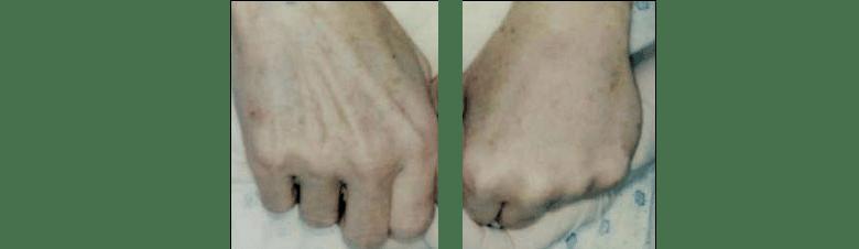 Hand Rejuvenation at Ablon Institute, Manhattan Beach CA