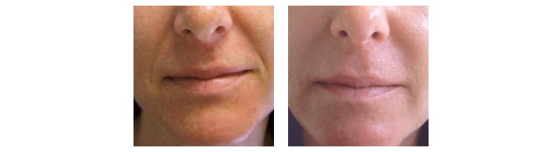 Results of fillers at Ablon Skin Institute.