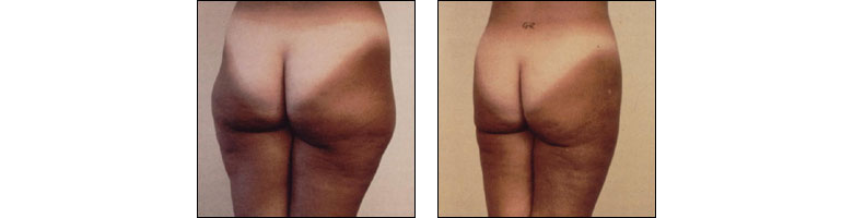 Liposhaping by Dr. Glynis Ablon at Ablon Institute.
