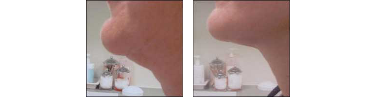 Fat Deposit Removal by Dr. Glynis Ablon and Ablon Skin Institute.