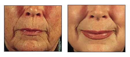 Results of Laser Resurfacing by Dr. Glynis Ablon of Ablon Institute.