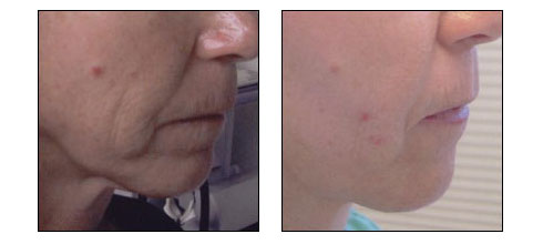 Results of Microneedling with RF by Dr. Glynis Ablon, Ablon Skin Institute