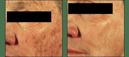 Laser resurfacing by Dr. Glynis Ablon of Ablon Skin Institute