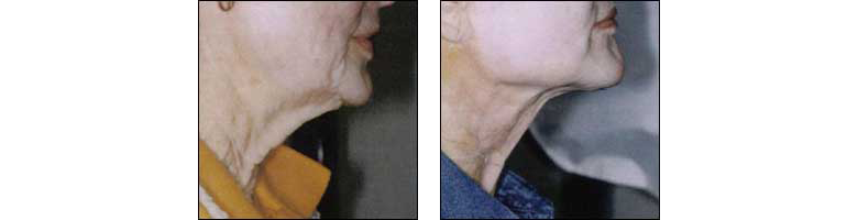 Neck Rejuvenation by Dr. Glynis Ablon at Ablon Institute.