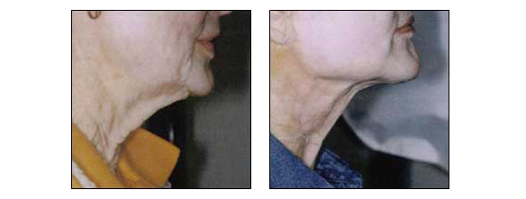 Neck Rejuvenation by Dr. Glynis Ablon of Ablon Skin Institute