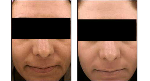 Before and after of peeling agents at Ablon Skin Institute
