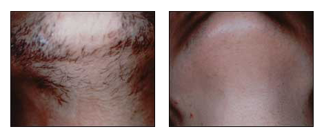 Permanent hair removal performed by Dr. Glynis Ablon of the Ablon Skin Institute