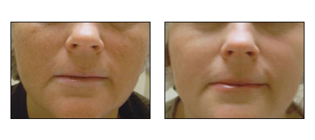 Photofacial rejueination at Ablon Skin Institute, Manhattan Beach CA