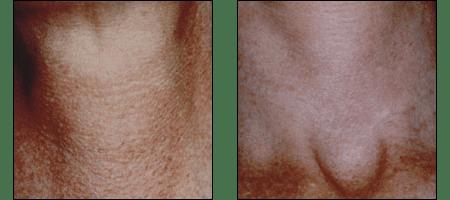 Photofacial rejueination at Ablon Skin Institute, Manhattan Beach CA