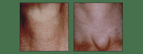 Photofacial rejuvenation at Ablon Skin Insitute