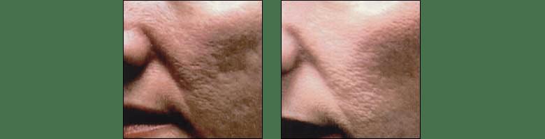 Acne scar treatments by Dr. Glynis Ablon at Ablon Skin Institute