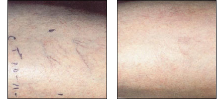 Results of Leg Vein Treatments at Ablon Institute.