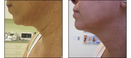 Results of the Ablon Skin Snip for neck rejuvenation