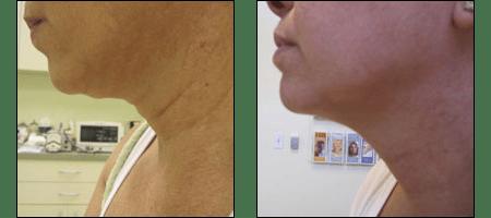 Results of the Ablon Skin Snip for neck rejuvenation