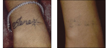 Laser Tattoo removal at Ablon Skin Institute, Manhattan Beach, CA