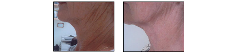 Tighter skin with Thermage Treatment by Dr. Glynis Ablon at Ablon Skin Institute