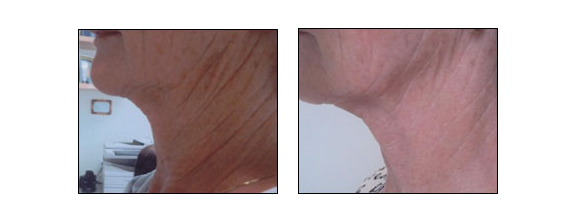 Results of Thermage Treatment by Dr. Glynis Ablon of the Ablon Skin Instutute