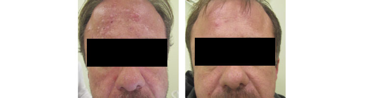 Thermaphoto Before & After image from Ablon Skin Institute.