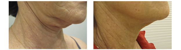 Before/After photos of Dr. Glynis Ablon's patient after ThermiRF Treatments