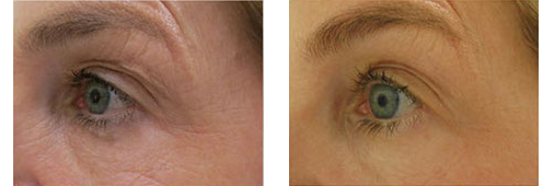 Before and After showing results of Thermismooth Treatment by Dr. Glynis Ablon at Ablon Skin Institute