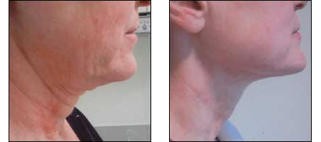 Patient results of Instalift, the non-surgical facelift alternative at Ablon Skin Institute