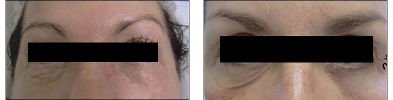 Patient photo showing before/after of Titan Laser treatment at Ablon Skin Institute, Manhattan Beach CA