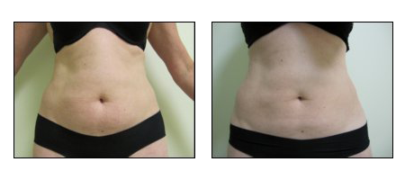 Cool Sculpting results at Ablon Skin Institute.