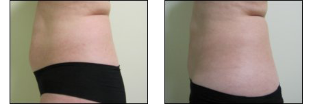 Before and After of patient with Zerona laser therapy