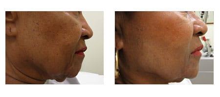 Instalift procedure at Ablon Skin Institute