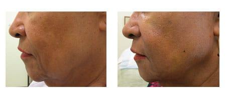 Instalift treatment at Ablon Skin Institute