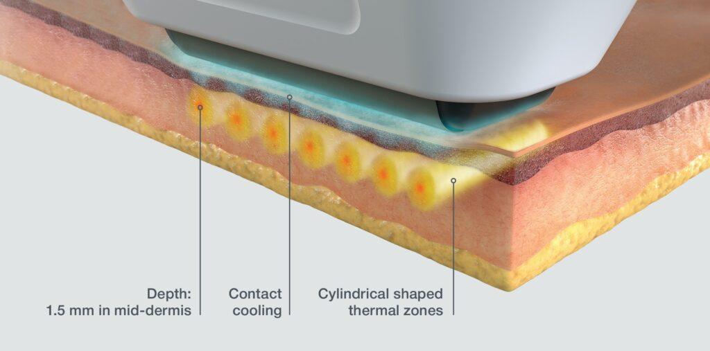 Sofwave image of skin